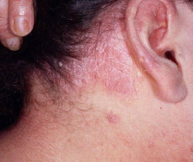 Существующие особенности лечения себорейного псориаза в волосистой части головы