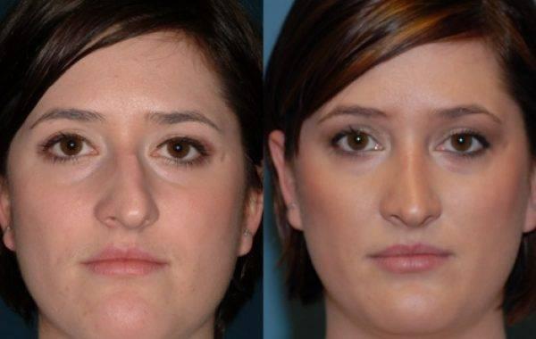 Методы и способы проведения операции по исправлению искривленной носовой перегородки