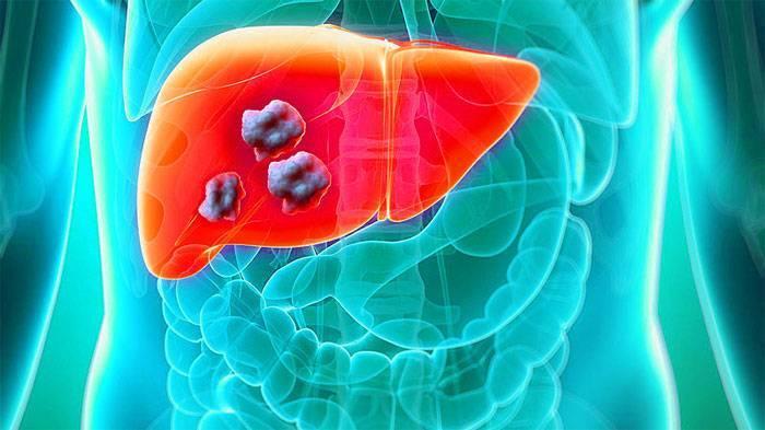 Как наступает смерть от рака — ooncologiya