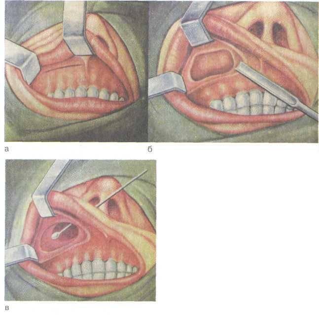 эндоскопическое удаление кисты верхнечелюстной пазухи
