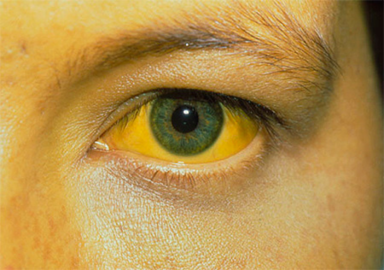 Почему у новорожденного белки глаз желтые
