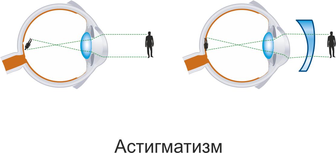 Контактные линзы для коррекции астигматизма: особенности, подбор, эффективность