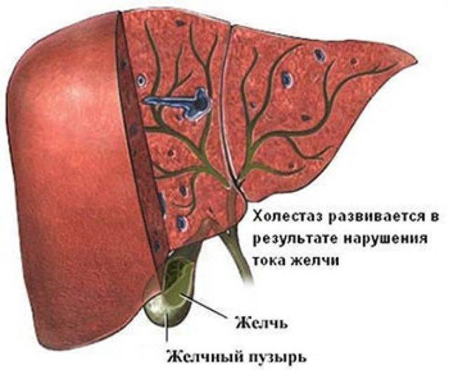 Рак печени: самые эффективные народные методы лечения