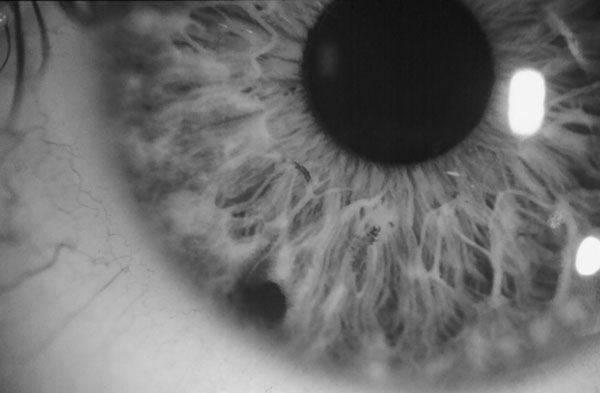 Образование пятна на белке глаза у человека