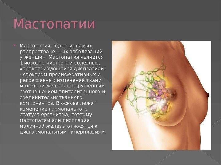 дисгормональная гиперплазия молочных желез