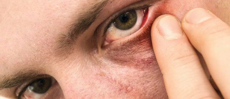 Почему чешутся уголки глаз и как снять зуд?