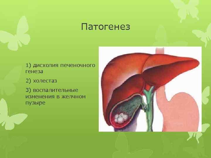 Дискинезия желчного пузыря
