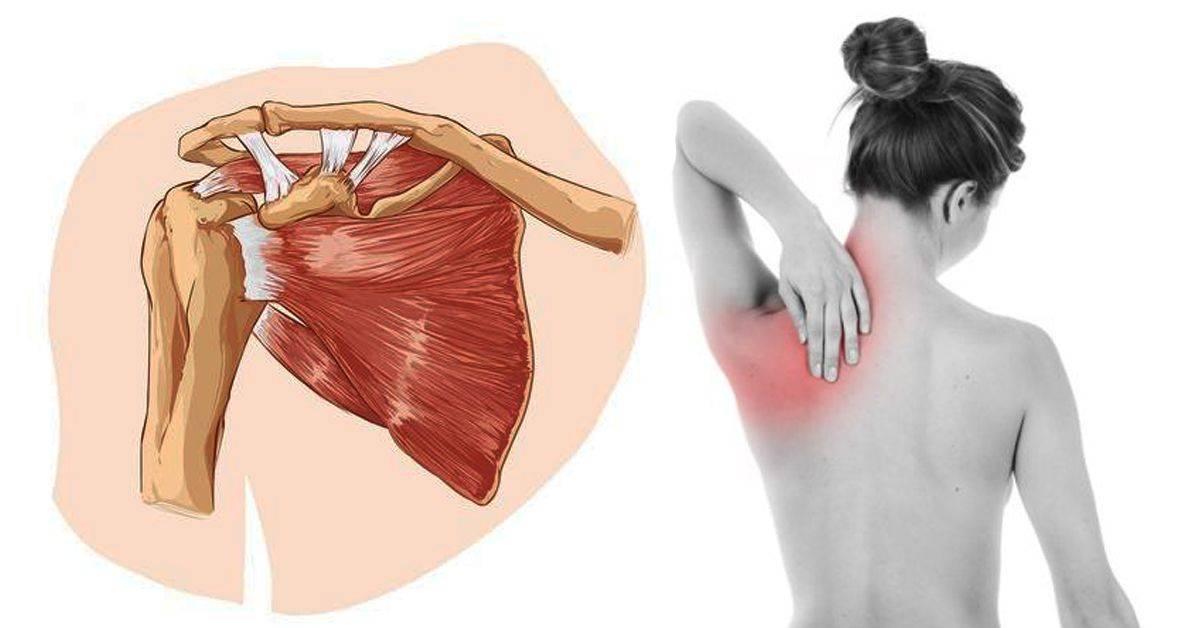 Невралгия под лопаткой: симптомы, причины возникновения, методы лечения