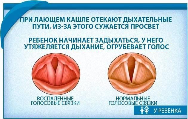 Затяжной лающий кашель у взрослого