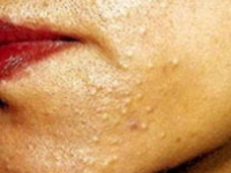 Демодекоз можно ли заразиться от человека