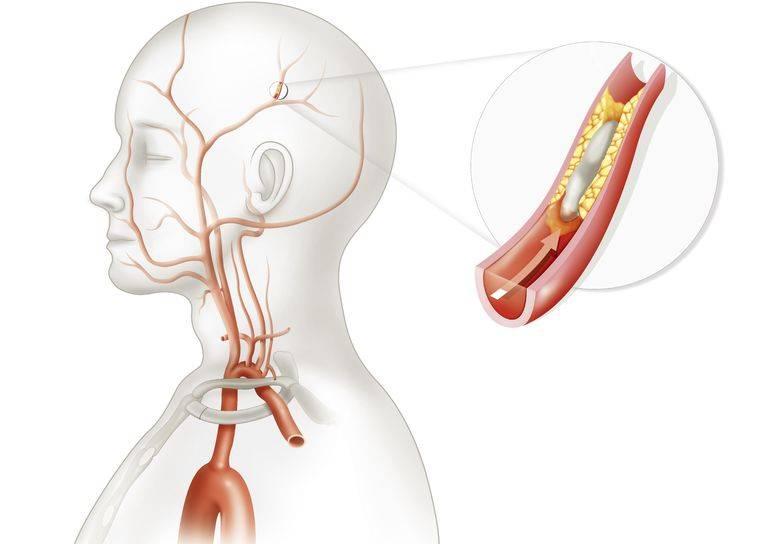Стенозирующий атеросклероз брахиоцефальных артерий (бца): лечение и какой прогноз на жизнь?