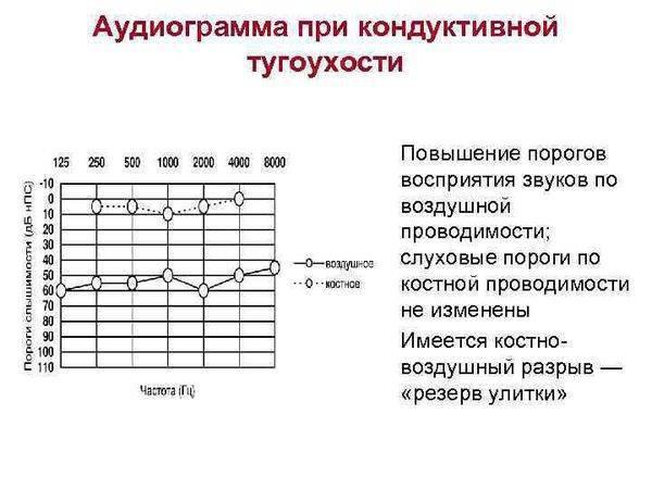 Аудиометрия — википедия с видео // wiki 2