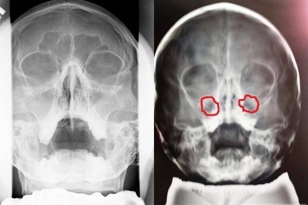 Рентген носовых пазух