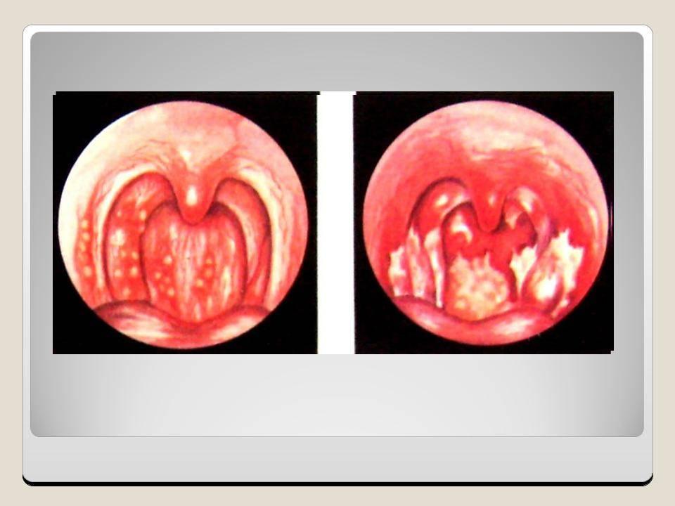 Хронический фарингит: виды и особенности лечения
