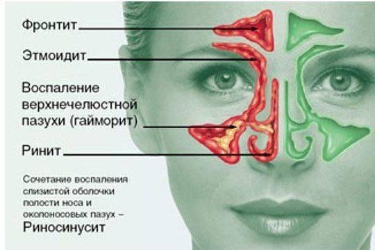 Фронтит: симптомы и лечение