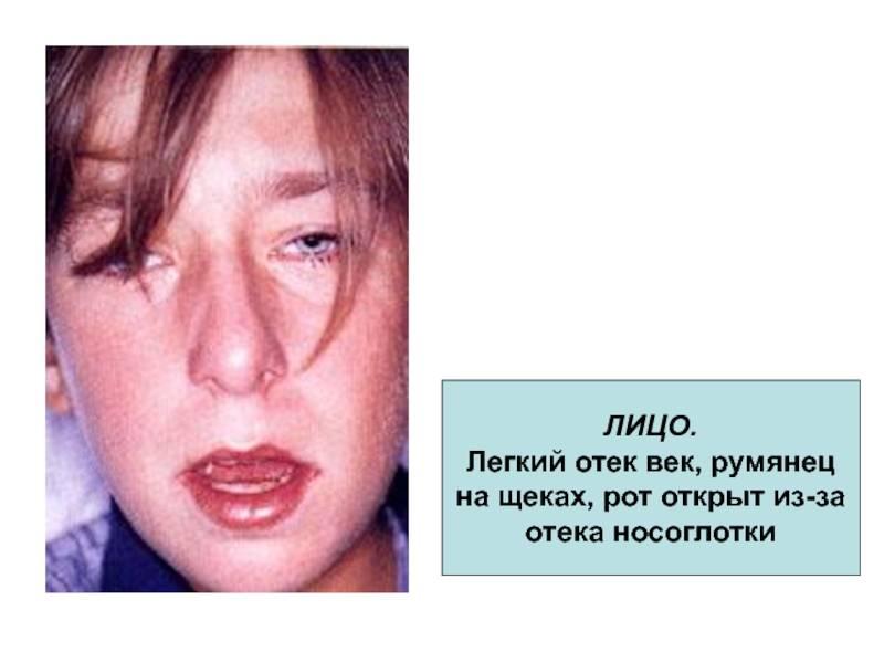 Отек носоглотки: причины, симптомы и лечение