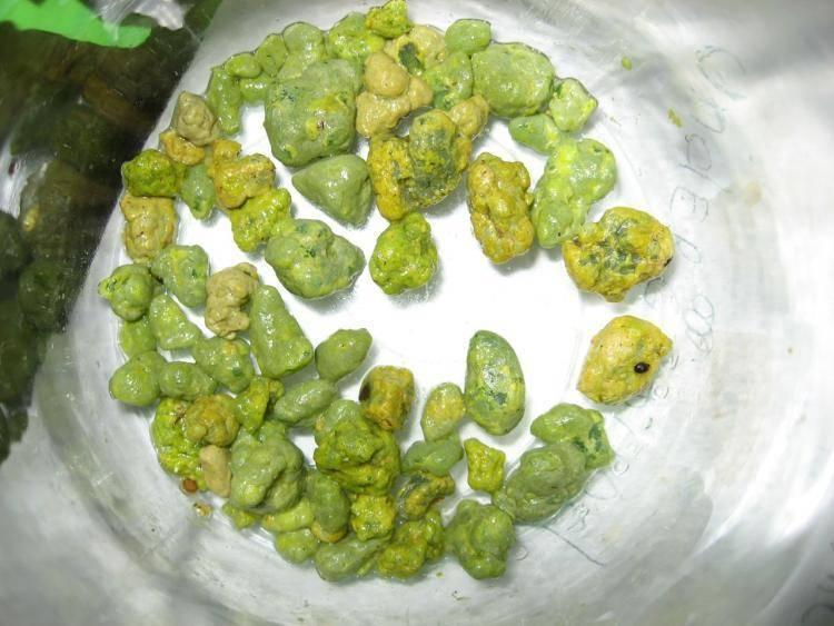 камни в печени лечение