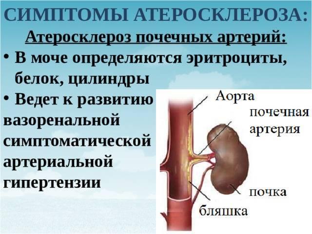 Причины и лечение атеросклероза почечных артерий