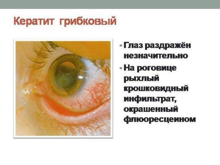 симптом характерный для кератита