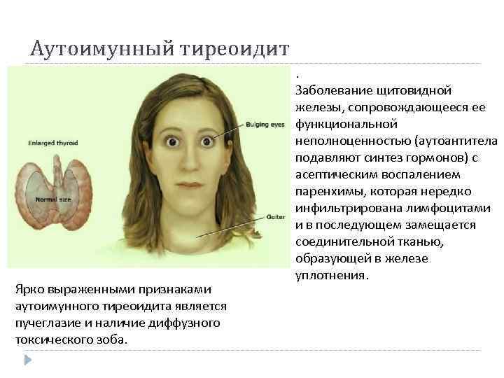 воспалительные заболевания щитовидной железы
