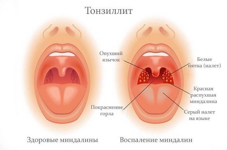 Хронический тонзиллит, лечение миндалин при хроническом тонзиллите без пробок хирургическим путем, казеозный детрит