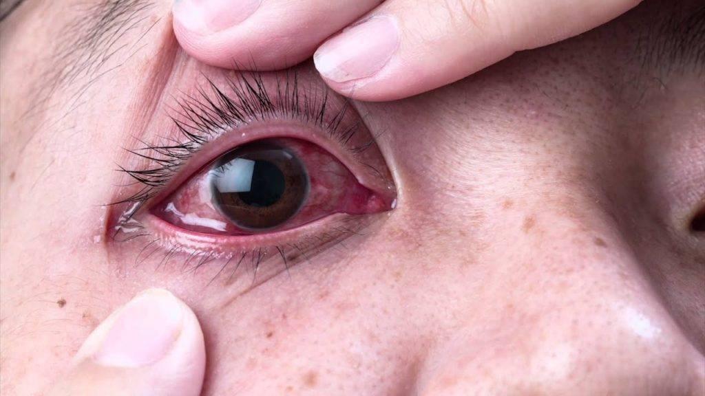 герпесный конъюнктивит симптомы
