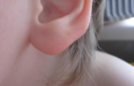 Почему воспаляются мочки ушей. болит мочка уха. что же делать
