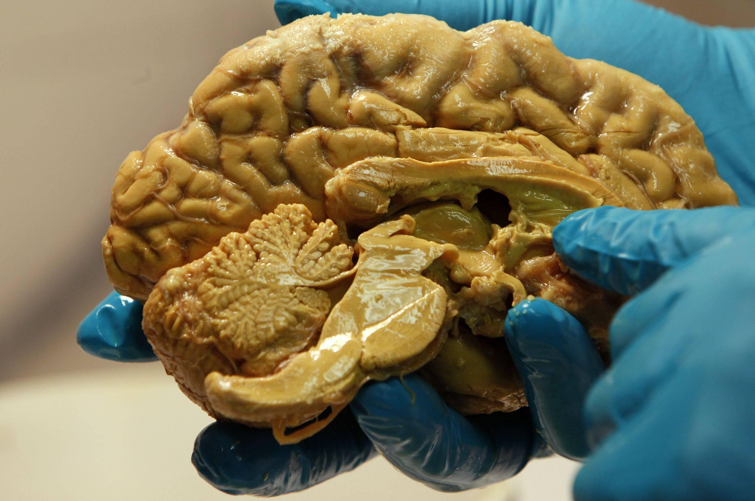 Черви в мозгу — parazit24