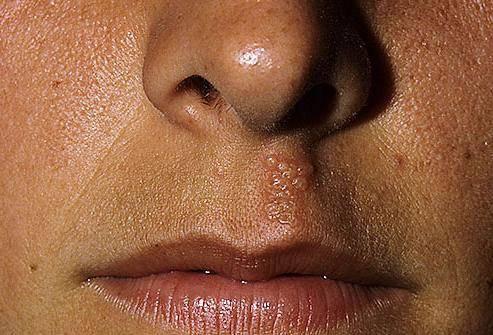 почему в носу появляются болячки
