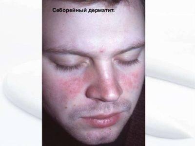 Себорея кожи головы заразна или нет