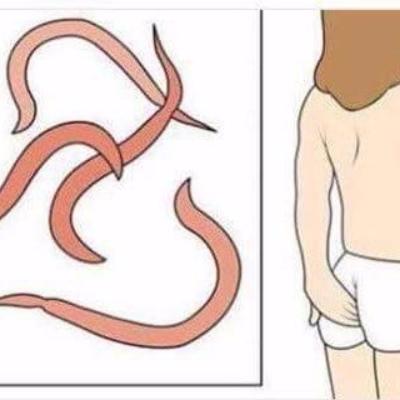 Доктор комаровский - острицы: симптомы и лечение, как избавиться от паразитов в организме