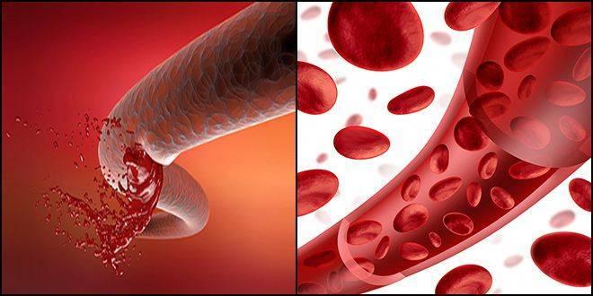 моча с кровью при цистите