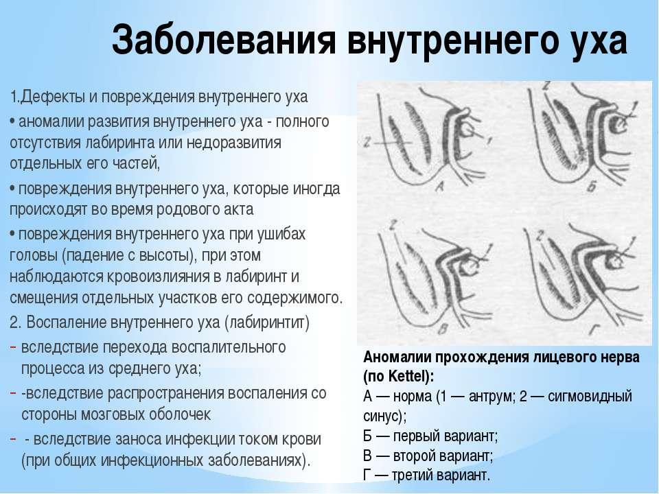 заболевание внутреннего уха симптомы