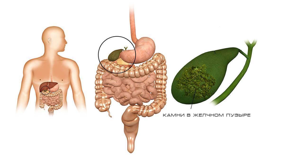 Диета при болезни желчного пузыря: тактика составления лечебного питания при различных заболеваниях