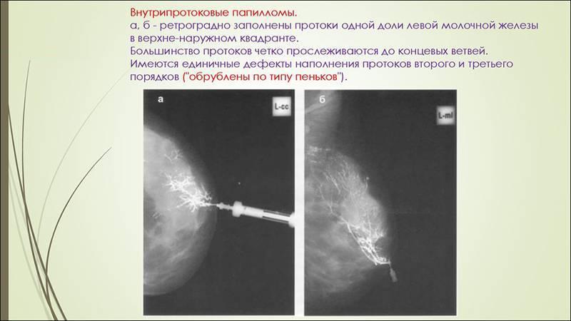 протоковая папиллома молочной железы