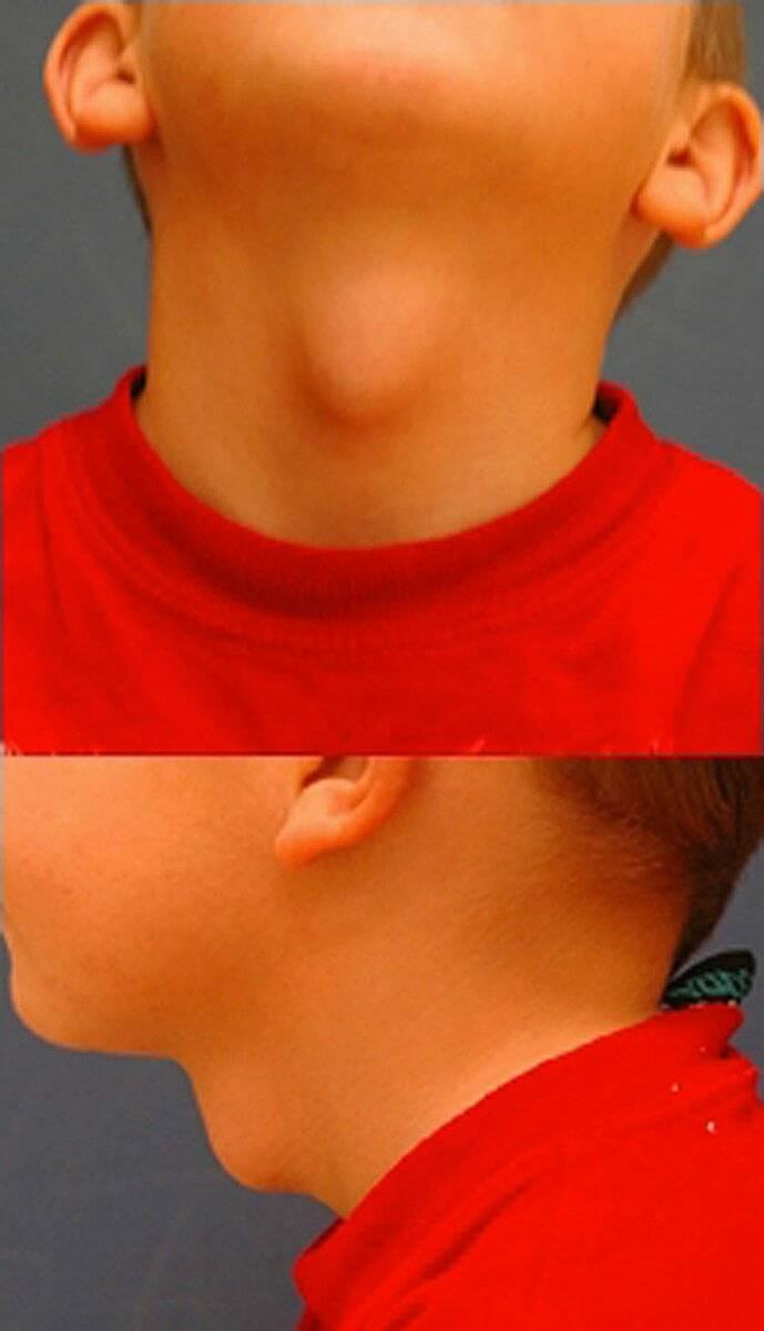 норма размеров щитовидной железы у детей