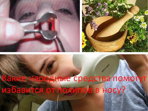 чистотел при полипах в носу
