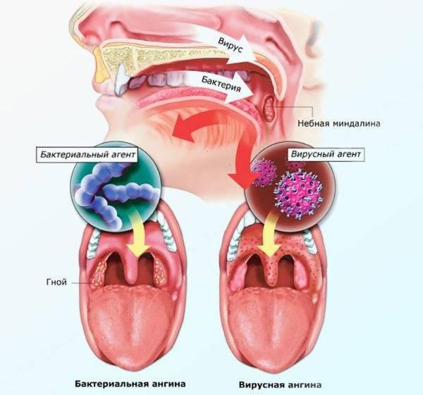 Вирусная и бактериальная ангина [причины, симптомы, лечение]