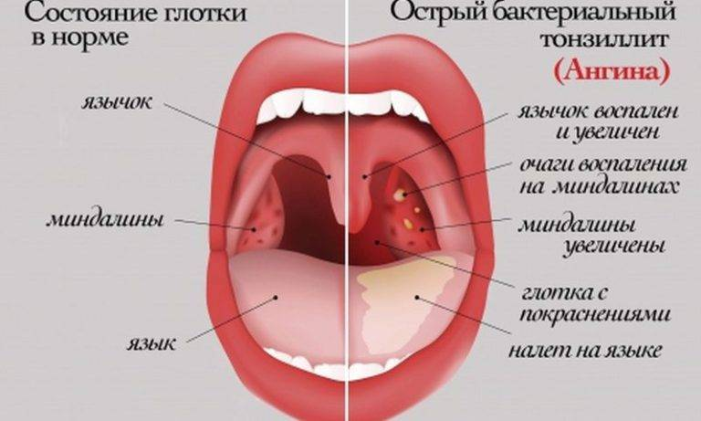 Тонзиллит: лечение в домашних условиях
