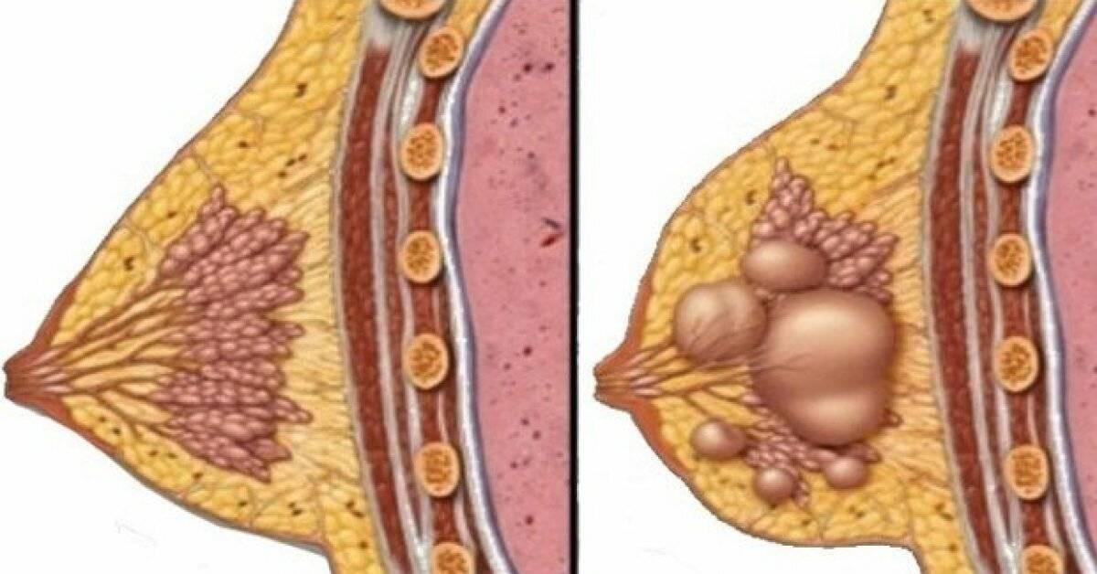 фиброзно кистозная мастопатия лечение народными средствами