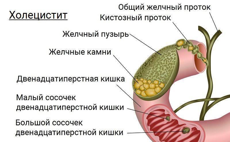 Причины, симптомы и лечение заболеваний желчного пузыря