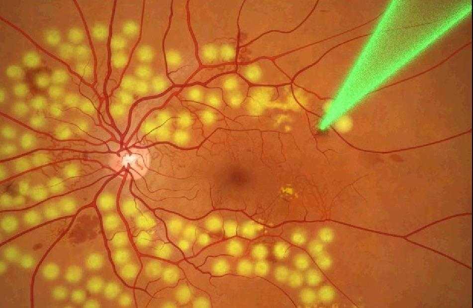 лечение сетчатки глаза народными средствами
