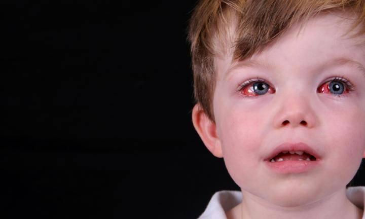 Конъюнктивит вирусный комаровский — здоровье глаз