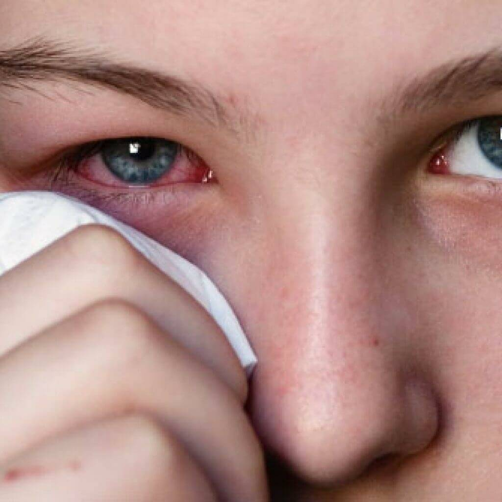 Вирусный конъюнктивит и его терапия: капли, мази, народное лечение