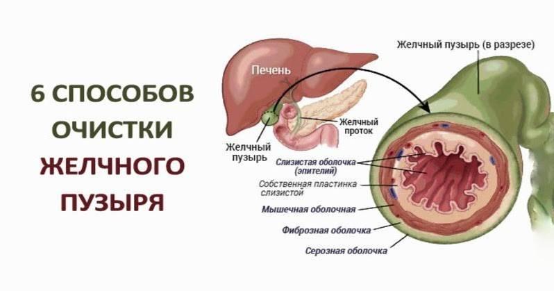 Полипы в желчном пузыре: опасно ли это, как лечить без операции народными средствами