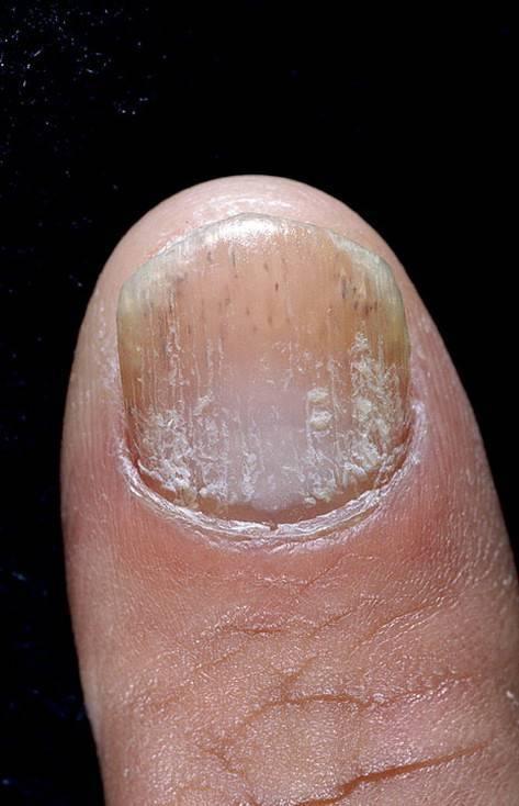 Лечение псориаза ногтей народными средствами