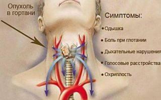 Полипы в горле болят