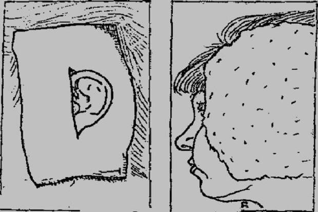 Водочный компресс на ухо: когда и как его делать?