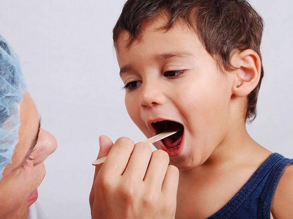 Дифтерия у ребенка. причины, симптомы, лечение и профилактика дифтерии