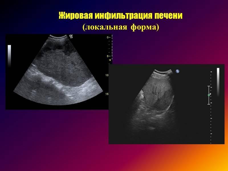 Как выглядит цирроз на изображениях узи?